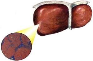 Некроз печени – отмирание гепатоцитов органа