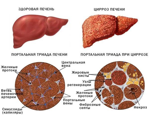 Кардиальный цирроз печени: что это за болезнь и чем она опасна