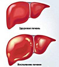 Диета при хроническом гепатите зависит от стадии развития заболевания