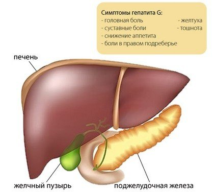 Гепатит g – поражение печени, вызванное представителем флавивирусов