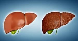 Фиброз печени 4 степени: прогноз при гепатите С и особенности лечения
