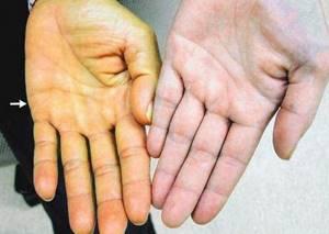Паренхиматозная желтуха: причины, последствия, лечение