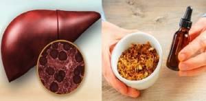 Прополис для печени и поджелудочной в терапии их патологий