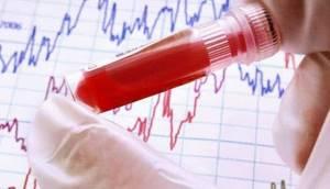 Содержание в крови желчи – состояние, вызванное застойными явлениями в ГБС