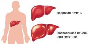 Диета при токсическом гепатите печени является основой лечения