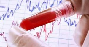 Анализ крови: билирубин прямой, непрямой и общий