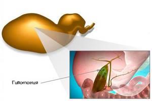 Гипотония желчного пузыря: почему возникает и как бороться с заболеванием