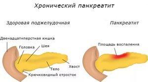 Симптомы болезни печени и поджелудочной железы: тревожные признаки