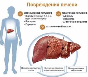 Увеличение печени: причины и лечение народными средствами опасной проблемы