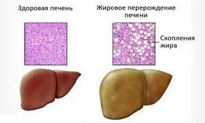 Гепатомегалия: диффузные изменения печени по типу жирового гепатоза