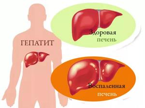 Новое в лечении гепатита В позволило сделать болезнь излечимой