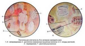 Билирубин в кале – тревожный признак, указывающий на заболевание