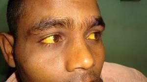 Синдром Ротора – симптомы, диагностика, лечение