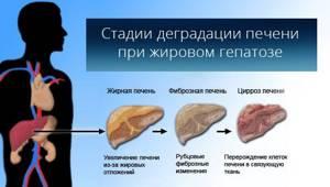 Жирная печень: причины и последствия опасного заболевания