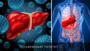 Лечение хронического неактивного гепатита С проводится комплексно