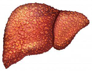 Можно ли вылечить цирроз печени при гепатите С: диагностика и терапия