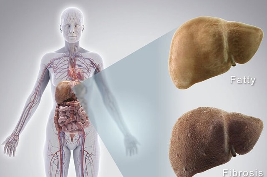 Тяжесть в печени: признак различных заболеваний и расстройств