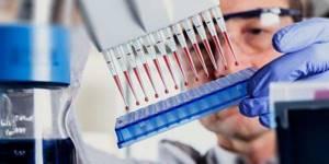 Анализ крови, АЛТ, АСТ, билирубин – что такое, и каковы показатели нормы