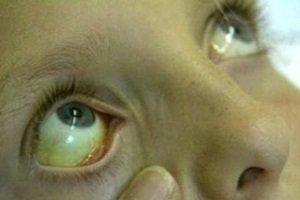 Анализ крови на синдром Жильбера: когда и как сдавать