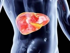 Что такое стеатогепатоз, и как лечить это заболевание