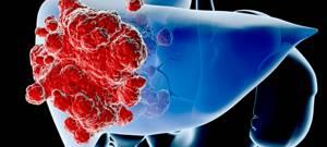Восстановление печени после химиотерапии как насущная необходимость