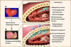 Диета при фиброзе печени снижает нагрузку на гепатоциты и ЖКТ