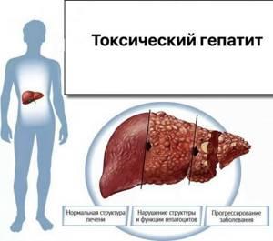 Гепатит е: что это за разновидность и чем отличается от других типов