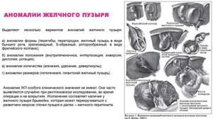 Деформация желчного пузыря: клиническая картина, виды и методы лечения