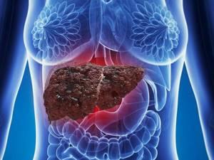 Стеатоз печени: лечение и симптоматика
