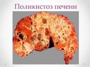 Поликистоз печени – это хроническая патология наследственного характера