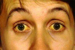 Желтуха у взрослых: симптомы и особенности терапии патологического процесса
