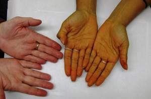 Как передается желтуха – способы заражения и виды заболеваний