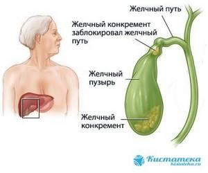 Киста в желчном пузыре – новообразование, которое требует лечения