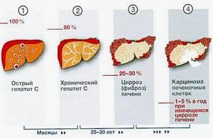 Как передается гепатит С, симптомы и лечение