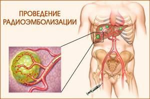 Метастазы в печени: причины и характерные симптомы