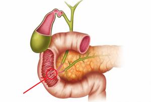 Камни в желчных протоках – признак патологии гепатобилиарной системы