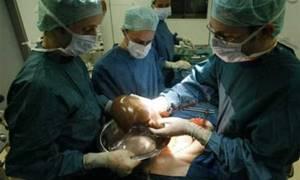Пересадка печени: показания, описание процедуры
