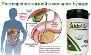 Песок в желчном пузыре, симптомы, лечение патологии