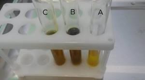 Зондирование желчного пузыря: виды, порядок проведения, оценка результатов