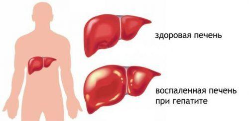Болезнь Боткина: лечение и последствия