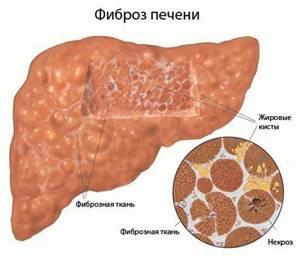 Вирус гепатита b: отличия заболевания и его опасность