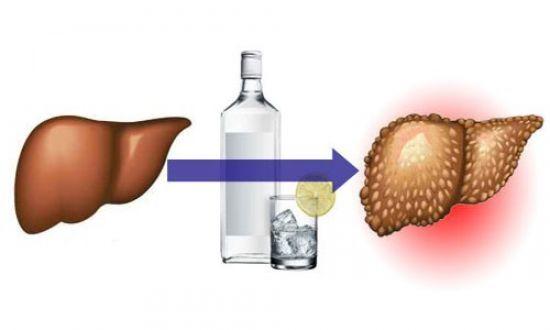 Лечение печени: симптомы, причины и методы лечения