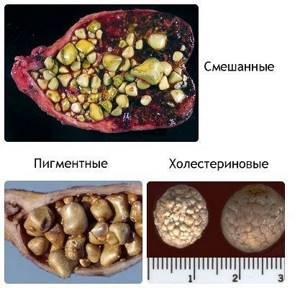 Камни в печени – следствие нарушения питания и болезненных состояний