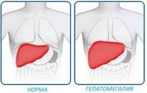 Диффузные изменения печени и поджелудочной железы, гепатомегалия
