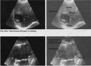 Гиперэхогенное образование в печени определяется при проведении УЗИ