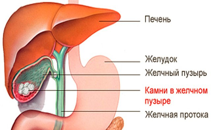Препараты для растворения камней в желчном пузыре и принципы терапии