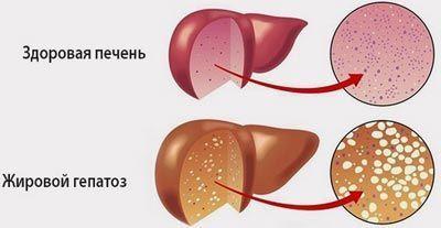 Жировой гепатоз печени: лечение зависит от причин заболевания