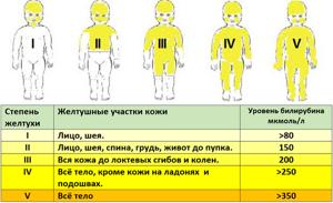 Урсосан для новорожденных от желтушки применяется по назначению врача