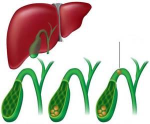 Дробление камней в желчном пузыре: способы лечения ЖКБ