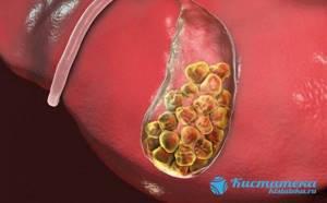 Лапароскопическая холицистэктомия: подготовка, операция, реабилитация